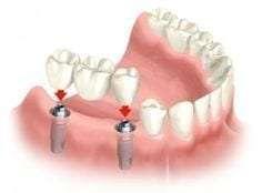 Replace Multiple Teeth